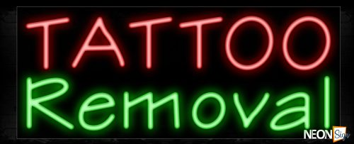 Image of Tattoo Removal Neon Sign